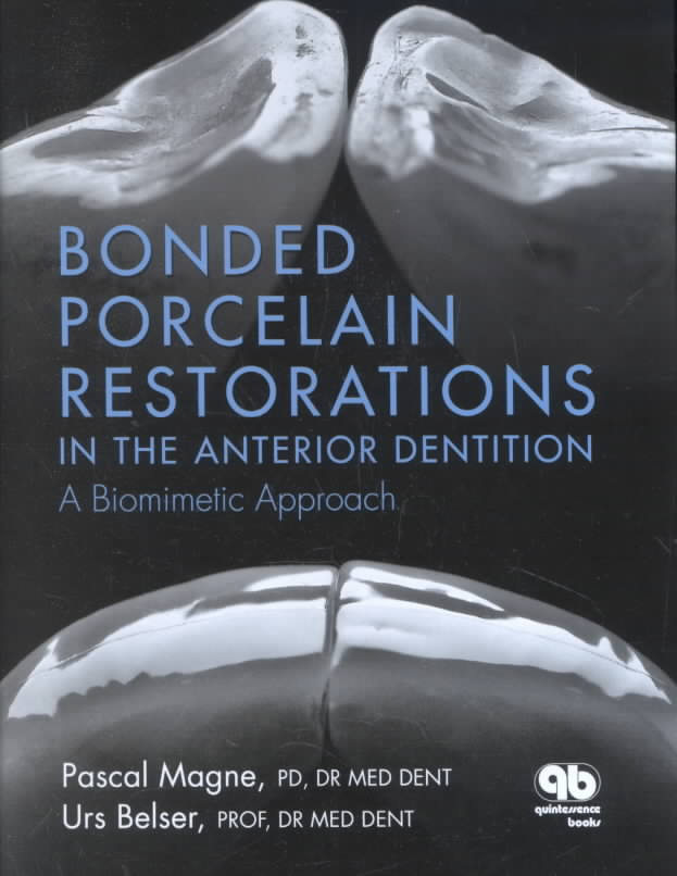 Bonded Porcelain Restorations in the Anterior Dentition By Magne, Pascal/ Belser, U.